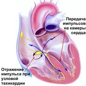 При избытке гормонов щитовидной железы возможно появление тахикардии