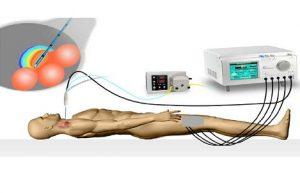 Термодеструкция узлов щитовидной железы