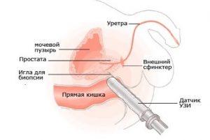Для диагностики фиброза простаты проводится трансректальное УЗИ