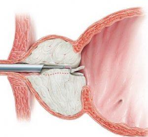 Для лечения аденомы простаты применяется метод трансуретральной резекции