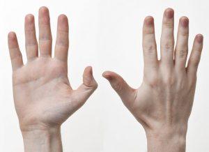 При зобе появляется тремор рук