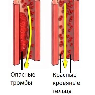 Причиной уплотнений бывают тромбы