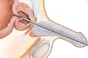 Лечение аденомы проводится методом трансуретральной резекции