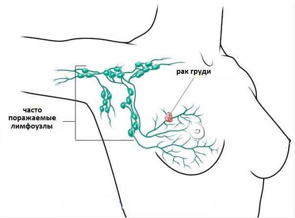 Лимфостаз подмышечных лимфоузлов