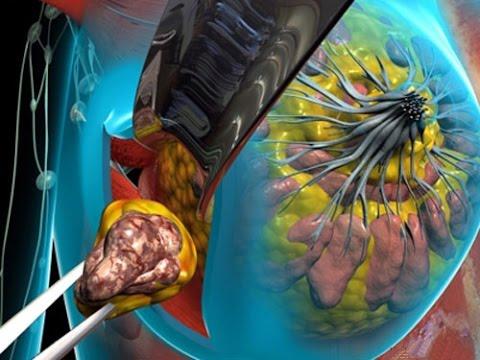 Для лечения опухоли может потребоваться оперативное вмешательство