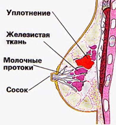 Фиброаденома представляет собой плотный подвижный узел