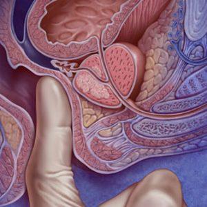 Урологический массаж проводится в лечебных и профилактических целях