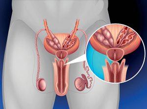 С помощью мастурбации устраняется застой простатического секрета