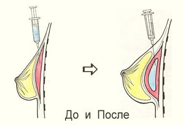 Жир вводится в грудь