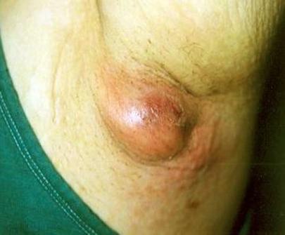 При заболевании происходит увеличение лимфатических узлов