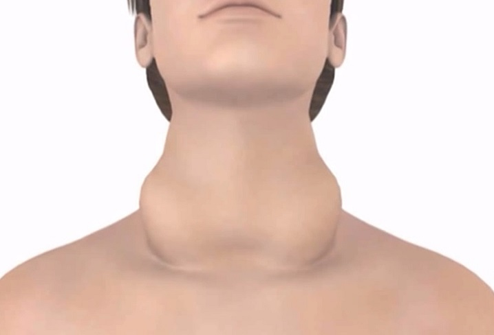 На третьей стадии заболевания шея заметно увеличивается в объеме