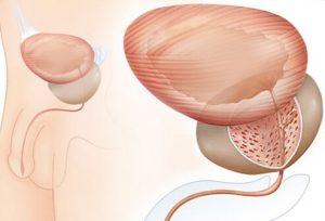 При аденоме предстательная железа увеличивается в размерах