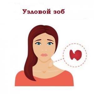 При узловом зобе увеличение щитовидной железы происходит неравномерно