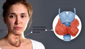 При развитии патологий щитовидной железы объем превышает нормативные значения