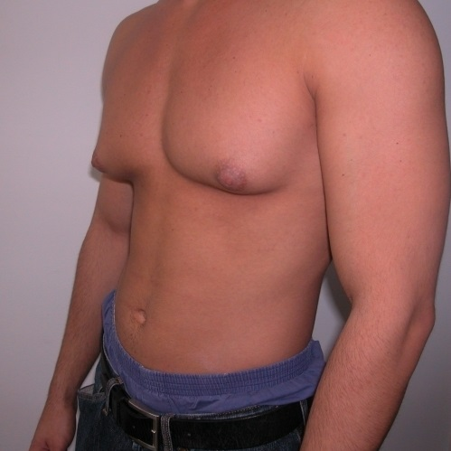 Увеличенные молочные железы у мужчин