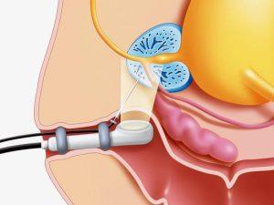 Ультразвуковое исследование проводится для диагностики патологий предстательной железы