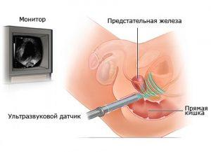 УЗИ простаты проводится трансректально