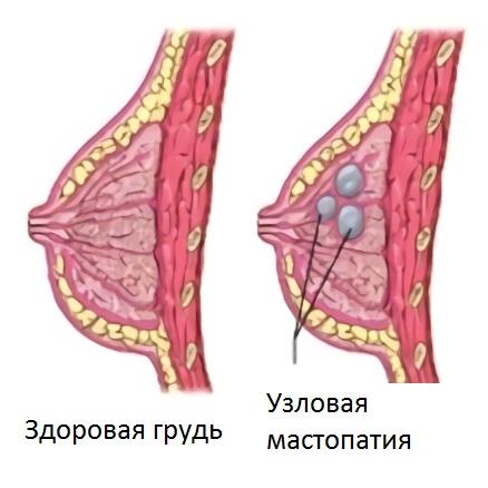 Узловая мастопатия вызывает набухание груди