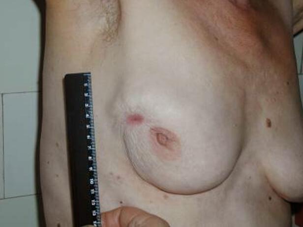 При узловой форме грудь покрывается бугорками