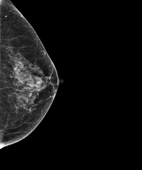 Узловая форма заболевания молочной железы