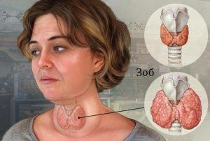 Зоб - увеличение щитовидной железы