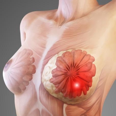 Из-за чего появляются узлы в груди