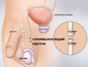 Вазэктомия используется как один из методов контрацепции