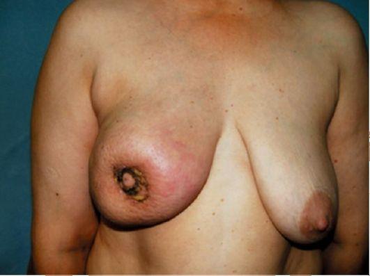Рак Педжета легко определяется визуально