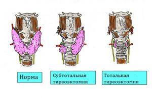 Возможно полное или частичное удаление щитовидной железы для лечения рака