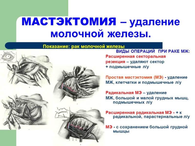 Лечение рака проводится хирургически