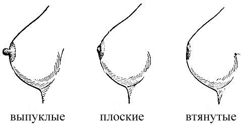 разновидность женские соски