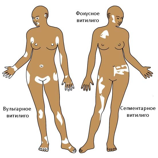 Одна из причин витилиго - заболевания щитовидки