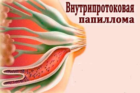 Рак чаще всего появляется при внутрипротоковых папилломах
