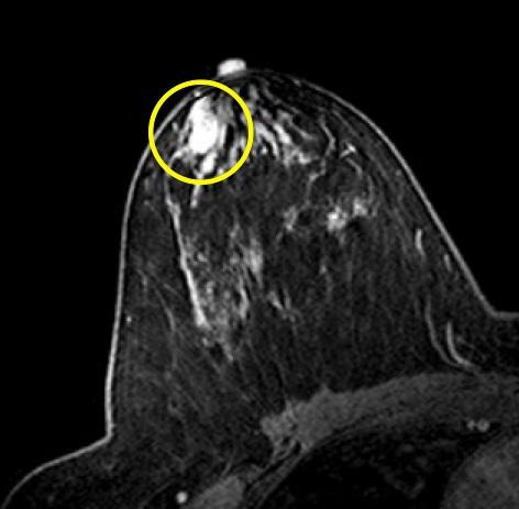 Внутрипротоковая папиллома развивается в протоках молочной железы