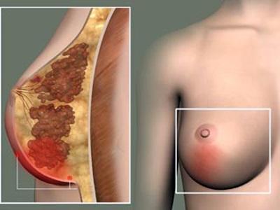 Воспаление в молочной железе