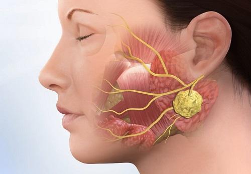 Радиоактивный йод в отдельных случаях вызывает воспаление слюнных желез