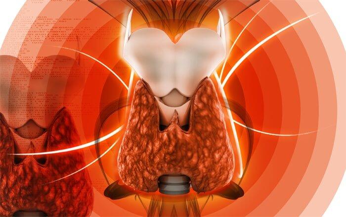 Гипотиреоз возникает в результате воспаления щитовидной железы