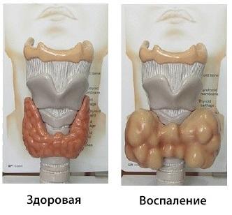 Хроническая форма воспаления щитовидки протекает длительно и требует квалифицированной помощи