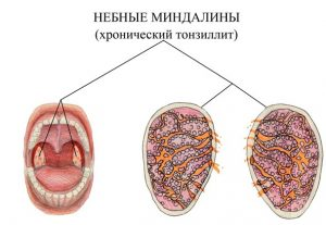Тонзиллит - одна из причин появления узлов в щитовидной железе