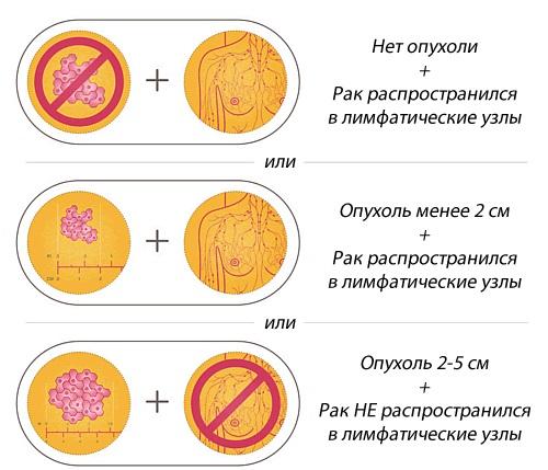 Варианты течения заболевания при второй стадии