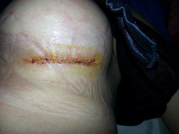 После операции может появиться отек и болезненность на прооперированном участке