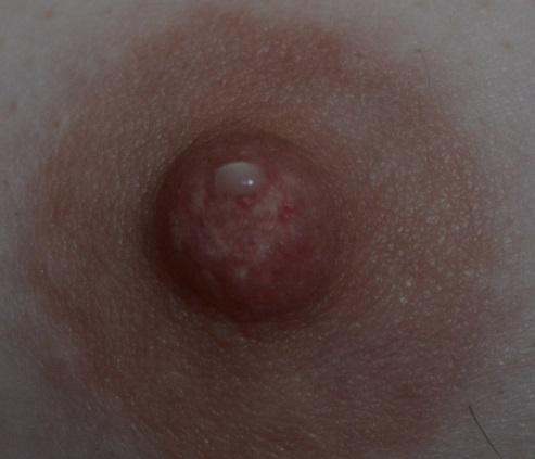 может ли появиться аллергия при беременности