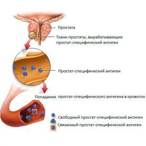 ПСА вырабатывается тканями простаты