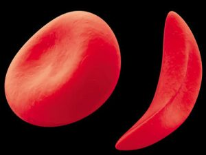 Гирудотерапия противопоказана при анемии