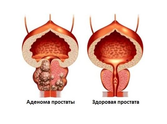 От чего возникает аденома простаты