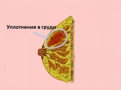 Важно начинать лечение мастопатии на первых этапах