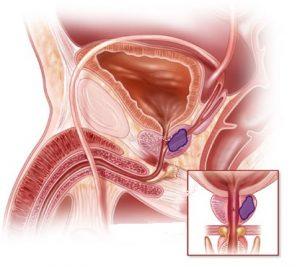 При раке предстательной железы затрудняется мочеиспускание