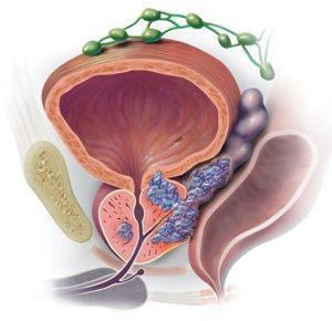 Рак предстательной железы характеризуется медленным прогрессированием