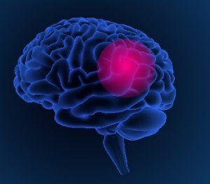 Проблемы со щитовидкой могут возникнуть при заболеваниях головного мозга