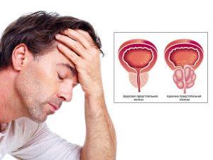 Заболевания предстательной железы доставляют мужчинам много неудобств